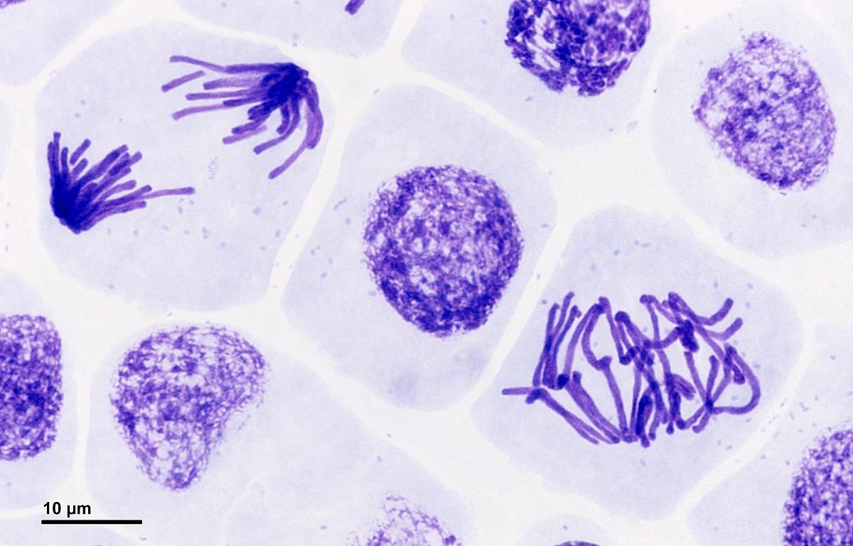 mitosis en microscopio